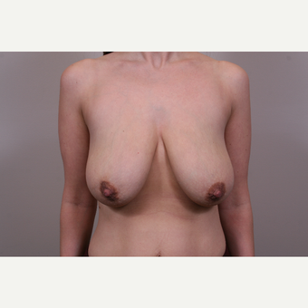 25-34 year old woman treated with Breast Lift before 3769660