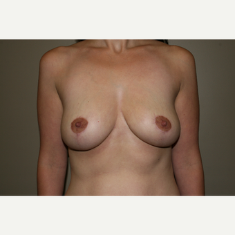 25-34 year old woman treated with Breast Lift after 3769660