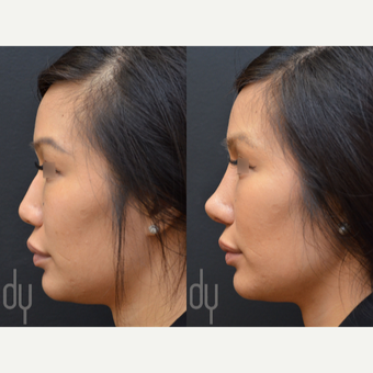 Revision Asian Rhinoplasty before 3477445
