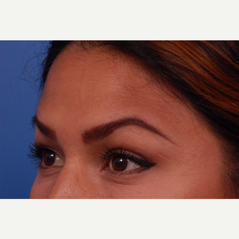 35-44 year old woman treated with Botox after 3168788