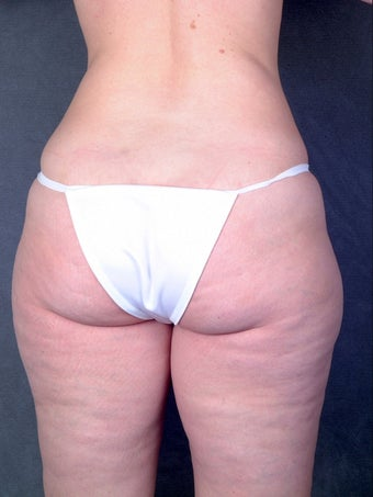 Liposuction  before 1058415