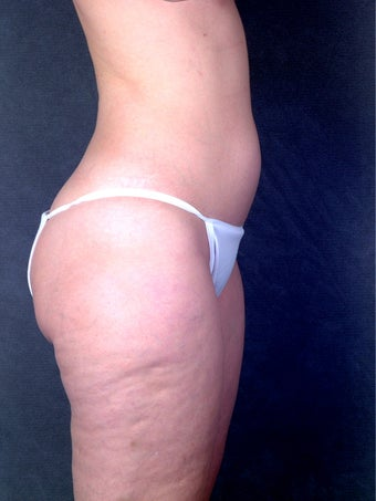 Liposuction  1058415