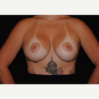 25-34 year old woman treated with Breast Lift with Implants after 3095111