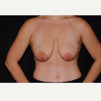 25-34 year old woman treated with Breast Lift with Implants before 3095111