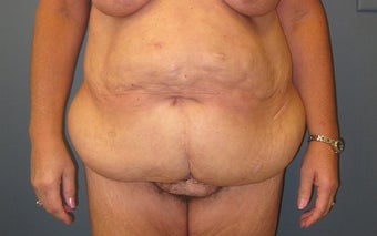 Panniculectomy after Massive Weight Loss before 1111456