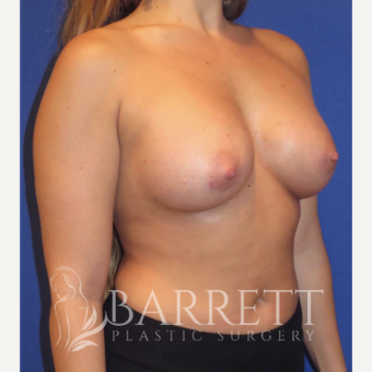 25-34 year old woman treated with Breast Implants 3584814