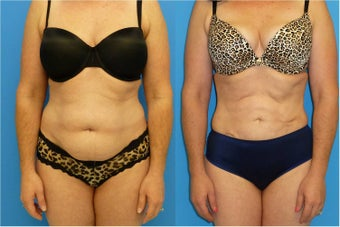 40 Year Old Female - Liposuction before 1077108