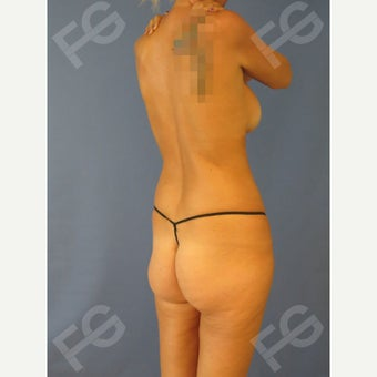 45-54 year old woman treated with Butt Implants + Fat Grafting before 1897865