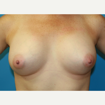 41 year old woman treated with Breast Augmentation after 3486827