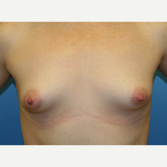 41 year old woman treated with Breast Augmentation before 3486827