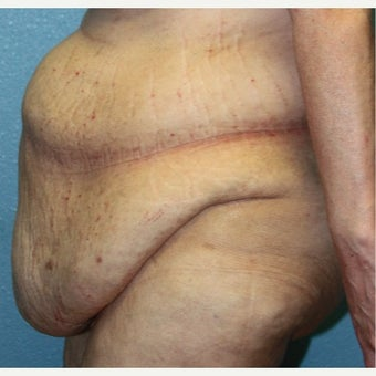 55-64 year old woman treated with Panniculectomy before 2551308