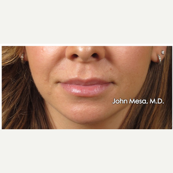 35-44 year old woman treated with Lip Augmentation before 3058428