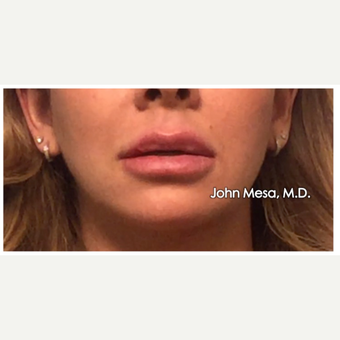 35-44 year old woman treated with Lip Augmentation after 3058428