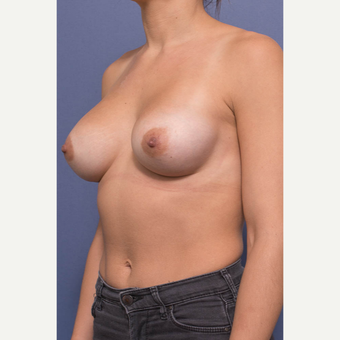 25-34 year old woman treated with Breast Augmentation after 3381399