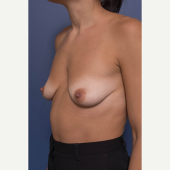 25-34 year old woman treated with Breast Augmentation before 3381399
