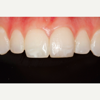18-24 year old woman treated with Porcelain Veneers after 2696861