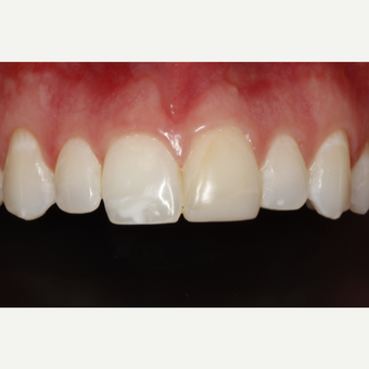 18-24 year old woman treated with Porcelain Veneers before 2696861
