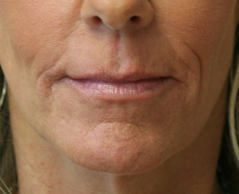 Juvederm in Nasal-labial folds after 675697