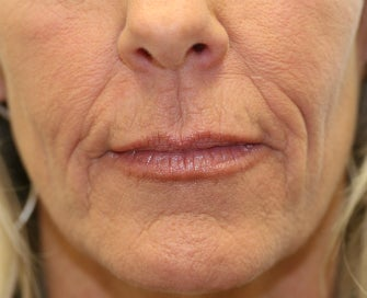 Juvederm in Nasal-labial folds before 675697