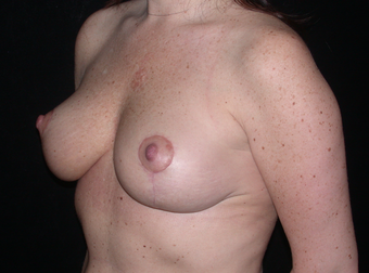 Mastopexy (Breast Lift) after 263467