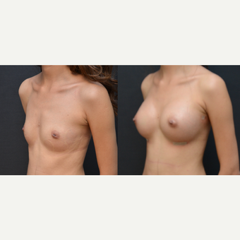 18-24 year old woman treated with Breast Augmentation before 3238781