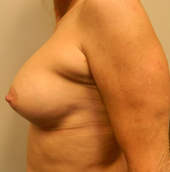 55-64 year old woman treated for Breast Implants 1534559