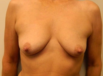 55-64 year old woman treated for Breast Implants before 1534559