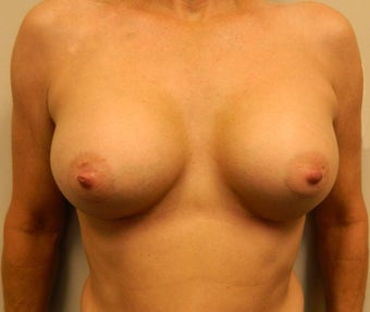 55-64 year old woman treated for Breast Implants after 1534559