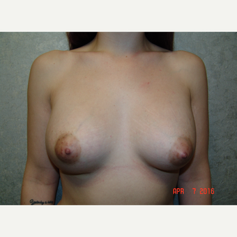 18-24 year old woman treated with Breast Augmentation after 3186017