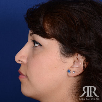 Rhinoplasty after 1357427