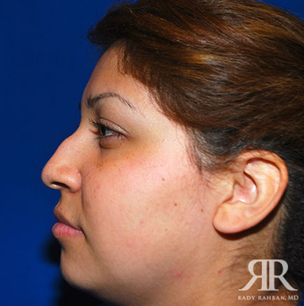 Rhinoplasty before 1357427