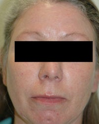 Laser Treatments for Rosacea after 104180