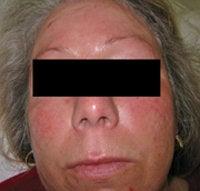 Laser Treatments for Rosacea before 104180