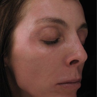 45-54 year old woman treated with Pearl Laser