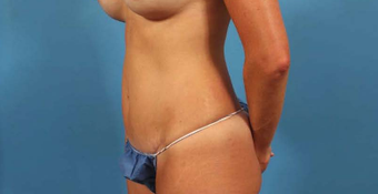 35-44 year old woman treated with Mini Tummy Tuck after 3787300