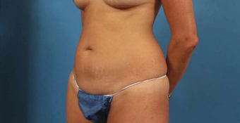 35-44 year old woman treated with Mini Tummy Tuck before 3787300