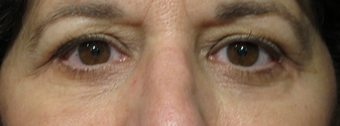 Eyelid surgery and mid-face lift after 1307529