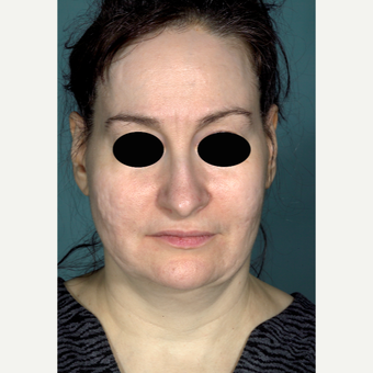 45-54 year old woman treated with Rhinoplasty before 3097532