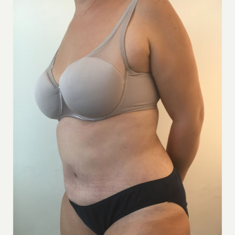 45-54 year old woman treated with Tummy Tuck after 3563017