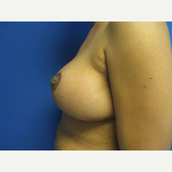 50 year old woman treated with Breast Reduction 1656808