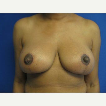 50 year old woman treated with Breast Reduction after 1656808