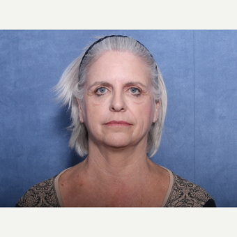 55-64 year old woman treated with Brow Lift before 3180140