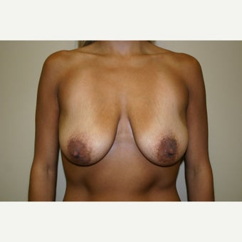 25-34 year old woman treated with Breast Lift with Implants before 1556304