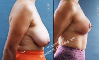 49 year-old female, full anchor breast reduction after 986984