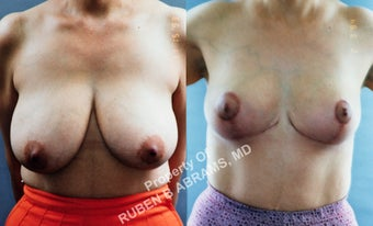 49 year-old female, full anchor breast reduction before 986984