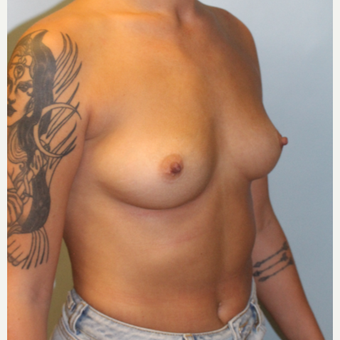 25-34 year old woman treated with Breast Augmentation before 3762883