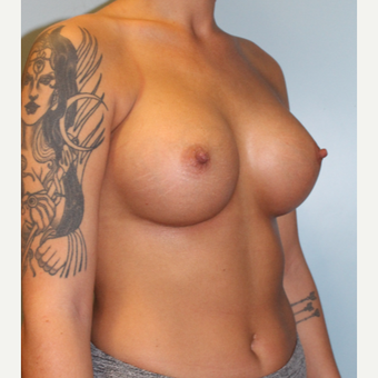 25-34 year old woman treated with Breast Augmentation after 3762883