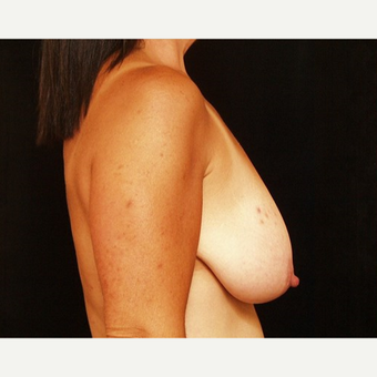45-54 year old woman treated with Breast Lift before 3576120