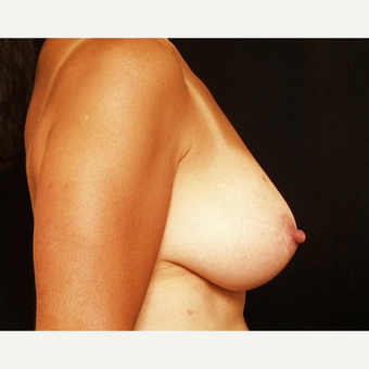 45-54 year old woman treated with Breast Lift after 3576120