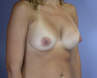 Breast Asymmetry Correction after 281343
